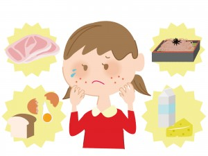 返事 書き方 アレルギー